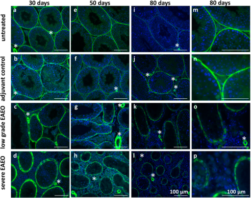 Distribution of α-smooth muscle actin (αSMA) in paraffin sections from untreated (a,e,i,m), adjuvant control (b,f,j,n), low grade (c,g,k,o) and severe EAEO (d,h,l,p) testis at 30 (a–d), 50 (e–h) and 80 (i–l) days after the first immunisation. Panels m–p represent a higher magnification of images i–l. In the testis from untreated and adjuvant controls, αSMA is localised in the peritubular cells as a thin layer, but in low grade and severe EAEO testis, the αSMA is diffusely distributed within the cell. αSMA is also seen in the blood vessels (asterisks) within the testis. Scale bars represent 100 μm.
