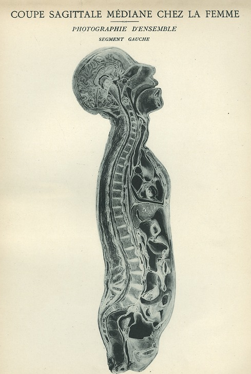<p>Image of sagittal plane view of left side of woman's head, neck, and torso. Issued in seven installments by the flamboyant Parisian surgeon Eugene-Louis Doyen (1859-1916), this atlas of 279 &quot;heliotyped&quot; photographic plates of cross-sectioned bodies was a radical departure from past practice. Atlas d'anatomie topographique.</p>