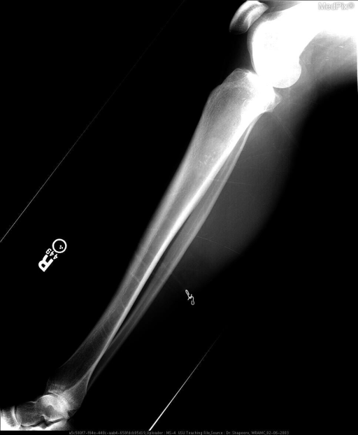 Lateral radiograph and coned-down radiograph of the right tibia shows a well-defined lytic mass with stippled calcifications without endosteal scalloping.