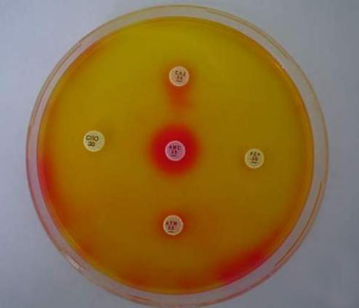 Detection of ESBL production by the double disk test on DSM-ES agar. Disks: centre, amoxycillin+clavulanate 20 + 10 μg; right, cefepime 30 μg; left, ceftriaxone 30 μg; top, ceftazidime 30 μg; bottom, aztreonam 30 μg.