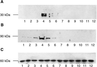 Western blot of soluble extracts of C2C12 myotubes treated with 0 (lanes 1 and 7); 1.0 (lanes 2 and 8); 2.1 (lanes 3 and 9); 4.2 (lanes 4 and 10); 10 (lanes 5 and 11) or 20 nM PIF (lanes 6 and 12) in the absence (lanes 1–6) or after 2 h pretreatment with trifluoroacetyl AA (20 μM) (lanes 7–12). Bands were detected using either antibody to 20S proteasome α-subunits (A), iPLA2 (B) or β-tubulin (C). The blots shown are representative of at least three separate experiments.