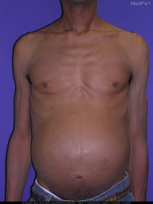 Scattered, well-defined, 3-8 mm, hard, mobile, subcutaneous nodules on the left shoulder, face, back, and abdomen, Positive hepatomegaly, but no lymphadenopathy. Laboratory: CBC was significant for anemia, with normal metabolic profile, LFTs, and prostate specific antigen. A colonoscopy performed 10 months prior was significant for one tubularadenoma. An infused computed tomography scan of the abdomen showed diffuse hypodensities in the liver suggestive of metastases. Extensive retroperitoneal symphadenopathy encasing the aorta and inferior vena cava was also seen, A single hyperdense nodule in the left lower lung field was also identified.