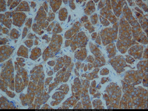 Histopathology: The biopsy shows a nodule composed of monomorphous small round cells with numerous apoptotic cells and rnitotic figures including atypical mitosis. The tumor was positive for antichromogranin and antisynaptophysin. Immunohistochemistry staining with AE1/AE3 anticytokeratin mixture strongly labeled the tumor in the dermis and subcutis. Anticytokeratin 20 labeled the tumor weakly positive at the edges. The tumor was negative for anticytokeratin 7.