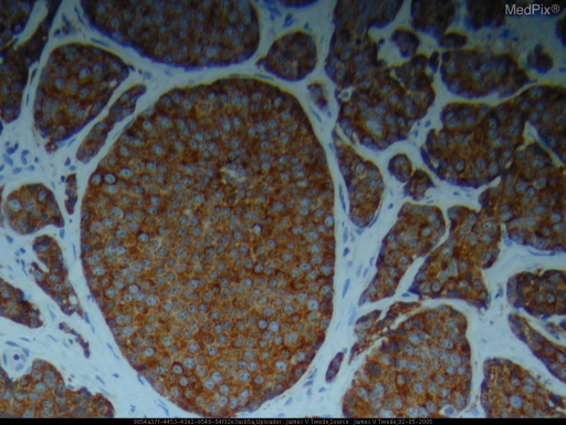 Histopathology: The biopsy shows a nodule composed of monomorphous small round cells with numerous apoptotic cells and mitotic figures including atypical mitoses. The tumor was positive for antichromogranin and antisynaptophysin. Immunohistochemistry staining with AE1/AE3 anticytokeratin mixture strongly labeled the tumor in the dermis and subcutis. Anticytokeratin 20 labeled the tumor weakly positive at the edges. The tumor was negative for anticytokeratin 7.
