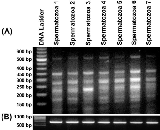 Minisatellite associated sequence amplification (MASA) performed using oligo based on the consensus of 33.15 repeat loci and cDNA from the spermatozoa of 7 different animals. Four to seven transcripts in the range of 0.15 kb to 0.5 kb were detected (A). β-actin was used as an internal control with cDNA from all the samples (B).