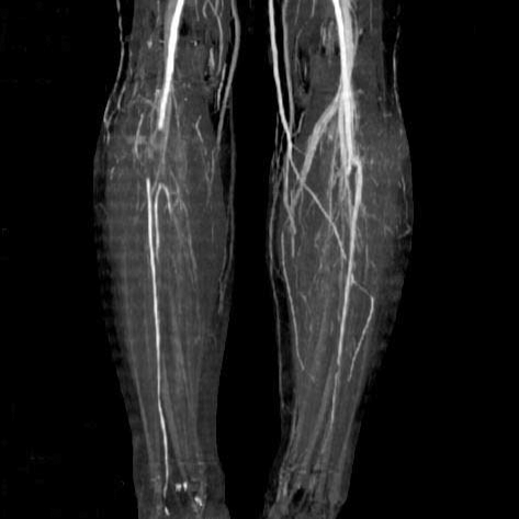 Lower extremity ct angiography occlusions of right pop open i lower extremity ct angiography occlusions of right popliteal artery right posterior tibial artery sciox Image collections