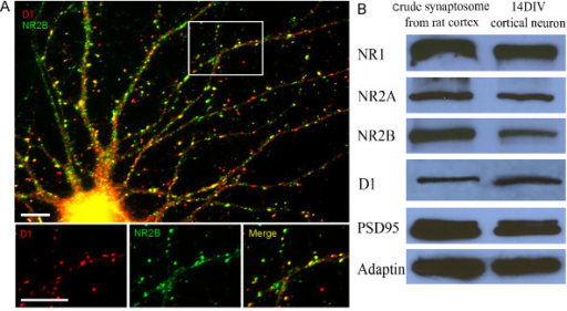 Expression of D1 and NMDA receptors in cultured PFC neurons. (A) Localization of D1 receptor and NR2B in cultured PFC neurons. PFC neurons in dissociated culture at 14 DIV were labeled for endogenous D1 and NR2B receptors with double immunofluorescent staining. Lower panel, images at higher magnification showing the colocalization of D1 and NR2B on the dendritic shafts and spines. Scale bars = 10 μm. (B) Analysis by Western blotting shows the protein expression of D1 receptor and NMDA receptor subunits in neuronal lysates. Crude synaptosome (20 μg of protein) from adult rat cortex (lane 1) and 14 DIV cultured PFC neurons (lane 2) were subjected to sodium dodecyl sulfate-polyacrylamide gel electrophoresis (SDS-PAGE) and probed for NR1, NR2A, NR2B, D1, PSD95, and adaptin. Both adult rat cortex crude synptosome and cultured PFC neurons exhibited similar expressions of NMDA and D1 receptors, as well as synaptic protein, suggesting the validity of the experiments in primary cultured neurons.