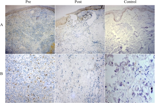 Immunohistochemical analysis of Foxp3 in tissue lesions of PKDL patients.Distribution of Foxp3 in dermal lesion tissue sections at pre treatment, post treatment stages and normal skin of healthy individuals. Panel A (10×), Panel B (40×) magnification.