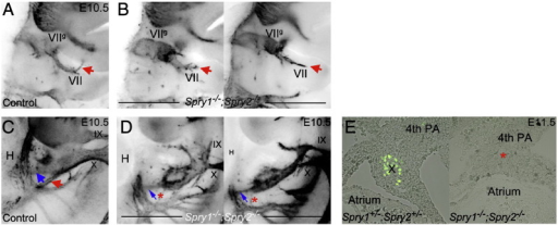Analysis of Spry1−/−;Spry2−/− facial and vagus nerve projections. The VIIth nerve penetrates the proximal second arch and turns anteriorly once it reaches the distal arch (red arrow) in control embryos (A). This nerve fails to turn in an anterior direction in Spry1−/−;Spry2−/− embryos with variable branching patterns (red arrows in B). High magnification views of the ventral-posterior projections of the distal vagus nerve are shown in control (C) and mutant (D) embryos at E10.5. A ventral projection towards the heart (blue arrows) appears diminished in mutant embryos and a posterior projection towards the gut (red arrow) appears to be absent (red asterisks) in mutant embryos at E10.5. The vagus nerve projection to the heart can be visualised in sections through an E11.5 control embryo by neurofilament stain (green stain in E), which appears to be absent in sections through a mutant embryo (red asterisk). VII = facial nerve; VIIg = facial ganglion; IX = glossopharyngeal nerve and X = vagus nerve.
