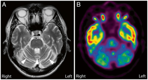 Brain MRI and18 F-FDG-PET-scan of the proband in the transverse plane. A: The MRI scan included a diffusion weighted sequence (DWI) and a T2* weighted sequence. No focal lesions were observed; however, the cerebellar hemispheres and vermis appeared atrophic (arrow heads). B: 18 F-FDG-PET-scan showing strikingly reduced metabolism in the cerebellum suggesting pathology primarily localized to the cerebellum.