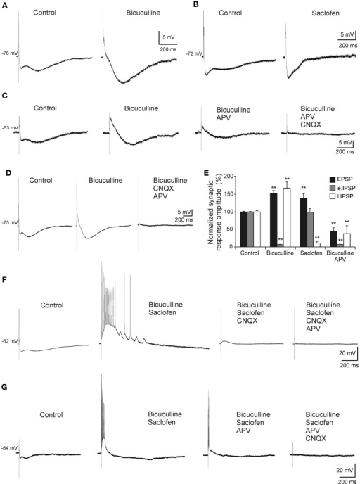 Pharmacological characterization of septohippocampal synaptic response. (A) Recordings from a pyramidal CA3 neuron illustrating a marked reduction of the early IPSP after perfusion with bicuculline (10 μM; specific blocker of GABAA receptors). (B) Blocking of the late IPSP after perfusion with saclofen (200 μM; blocker of GABAB receptor) was accompanied by a mild increase of the early IPSP and EPSP. (C) The increase in the amplitude of EPSP and late IPSP produced by perfusion of bicuculline was reduced by APV application (50 μM; specific blocker of NMDA receptor). Membrane potential was maintained at values more positives than resting membrane potential to assure NMDA receptors functionality. Synaptic response was completely removed with the addition of CNQX (10 μM; competitive non-NMDA receptor antagonist). (D) Blockade of the early IPSP with bicuculline (n = 4) was associated with a marked increase in amplitude of EPSP and late IPSP. Excitatory and inhibitory responses were blocked by CNQX and APV. The cells were held at −75 mV (a membrane potential where NMDA receptor-mediated currents are ). (E) Histograms with relative mean amplitude as percentage of control of the different components of the complex synaptic response (EPSP; early, e.IPSP; and late, l.IPSP) under pharmacological conditions described in (A–D) (**p < 0.001). (F) Both, early and late IPSPs were blocked by bicuculline and saclofen, respectively, while a large repetitive burst of action potential appeared (n = 4). At membrane potential values that assured NMDA activation, this epileptic-like activity could be removed by CNQX. Finally, residual excitatory NMDA response was eliminated by APV perfusion. (G) During the epileptic-like activity induced by both inhibitory components elimination, and at membrane potential values that led NMDA receptor activation, APV perfusion reduced the size of the epileptic response that had to be removed by addition of CNQX (n = 4).