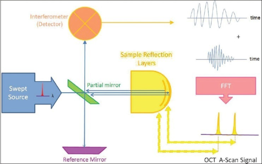 Block diagram of optical coherence tomography open i block diagram of optical coherence tomography ccuart Choice Image