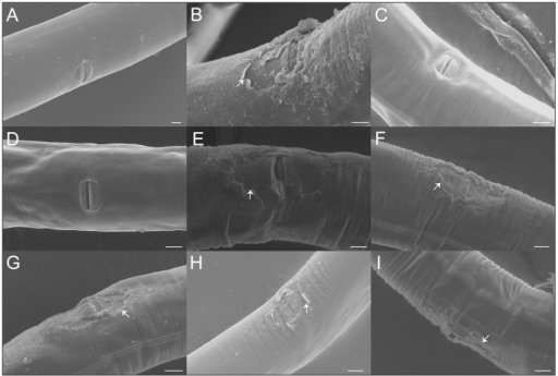 Mating causes vulva cuticle damage in C. elegans hermaphrodites.(A) The vulva of an unmated N2 hermaphrodite. (B) The vulva of a N2 hermaphrodite mated with a male with an N2 background. The arrow denotes where delamination of the cuticle surface near the vulva has occurred. (C–D) Unmated QG2288 hermaphrodites with no apparent physical damage. (E) A rare unmated QG2288 hermaphrodite with damage near the vulva (arrow). (F–I). QG2288 hermaphrodites mated with males of the same strain. Arrows denote the presence of cuticle tearing near the vulva. Scale bars represent ten microns in all panels.