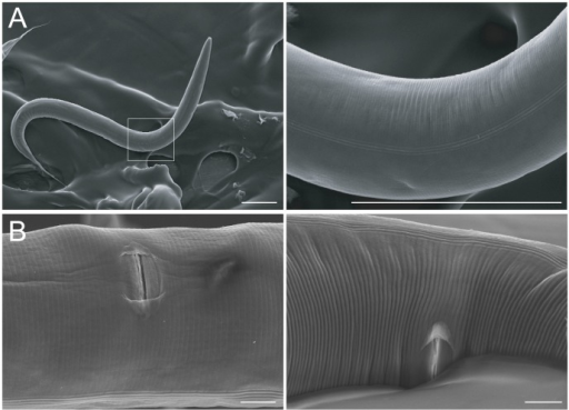 Soil conditions do not cause cuticle damage.SEM images of hermaphrodites grown in soil plate conditions. (A) Low- (left) and high-magnification (right) images of a worm grown for five days in soil, showing pristine ultrastructure of the cuticle. The three parallel alae (ridges running transversely across the cuticle) are clearly visible in the high-magnification view. (B) Soil conditions also do not damage cuticle surrounding the vulva. Two representative specimens are shown. Scales bars represent 100 microns in A and 10 microns in B.