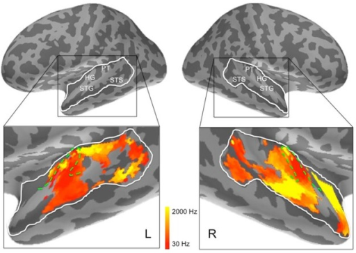 Frequency preferences in left and right hemisphere superior temporal cortex derived from ssRSA analysis of EMEG data. The search areas were restricted to the regions denoted by the white lines in the upper panels. Green dashed lines (lower panels) show the outlines of Heschl's gyrus (HG). Other anatomical landmarks are superior temporal gyrus (STG), superior temporal sulcus (STS), and planum temporale (PT). The outlines of HG were generated based on the FreeSurfer cortical parcellation (Fischl et al., 2004; Desikan et al., 2006) and on Moerel et al. (2014).
