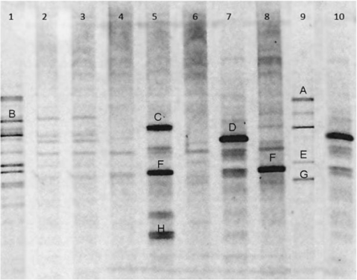 V3 region of 16S rRNA gene profile from COPD group(lane 4–10)and healthy group(lane 1–3)analyzed by DGGE. Bands Bands A, B, C, D, E, 5 F,8 F,G and H were cut for sequencing.