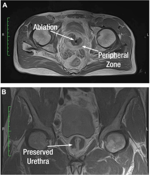 Gadolinium-enhanced transverse (A) and coronal (B) magnetic resonance images showing large thermal lesions outlining the transition zone while preserving the peripheral zone and urethra.