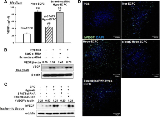 Transplanted hypo-ECFCs enhance secretion of vascular endothelial growth factor (VEGF) in ischemic limb muscle via STAT3 signaling. a, b ECFCs, si-STAT3-ECFCs, and scramble siRNA hypo-ECFCs were cultured in normoxic or hypoxic conditions for 12 h, and VEGF levels were determined by using ELISA and western blot analysis. The results are expressed as the mean ± SD. c Western blotting analyses of VEGF conducted 3 days after transplantation of nor-ECFCs, hypo-ECFCs, si-STAT3/hypo-ECFCs, or scramble siRNA/hypo-ECFCs. d Immunofluorescence staining for VEGF in ischemic tissues conducted 3 days after transplantation of nor-ECFCs, hypo-ECFCs, si-STAT3/hypo-ECFCs, or scramble siRNA/hypo-ECFCs (n = 7). **P < 0.01 vs. nor-ECFCs; ##P < 0.01 vs. hypo-ECFCs; $$P < 0.01 vs. si-STAT3/hypo-ECFC. ECFC endothelial colony-forming cell