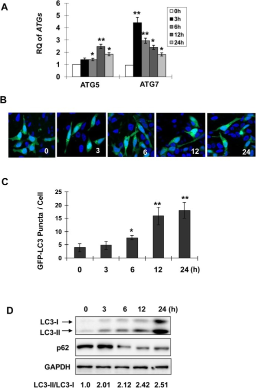 Celastrol triggers autophagy in prostate cancer cells.Parental LNCaP cells (A, D) or the cells transfected with GFP-LC3 (B, C) were treated with celastrol at 2.0 μM for indicated times. mRNA expressions of autophagy related genes were measured by qPCR (A). RQ, relative quantity. GFP-LC3 transfected cells were stained by DAPI after treatments. GFP-LC3 puncta were observed under confocal microscope (B) and quantified in C. The cells that contained over 5 puncta were selected and fifty cells were analysed for each treatment. D, Protein extracts were immunoblotted with antibodies against LC3, p62 and GAPDH (loading control). Asterisks denote significance compared with control (0 h). *, P <0.05; **, P <0.01.