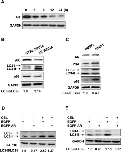 "AR suppression on celastrol induced autophagy.A, LNCaP cells were treated with celastrol at 2.0 μM for indicated times, the protein level of AR was revealed by Western blotting using GAPDH as a loading control. B, LNCaP cells were transfected with AR siRNA or control siRNA for 24 h, the effects on AR knockdown and autophagy induction were verified by Western blotting using AR, LC3, p62 and GAPDH (loading control) antibodies. C, LNCaP cells were subjected to androgen starvation as described in ""Materials and Methods"", followed by 1 nM of R1881 treatment for 24 h. AR and its target PSA, as well as autophagic makers LC3 and p62 were detected by Western blotting using GAPDH as a loading control. LNCaP (D) or DU145 (E) cells were transfected with pEGFP-C1-AR (EGFP-AR) or empty vector (EGFP-V). D, After transfection, LNCaP cells were cultured in the medium containing R1881 (1 nM) and treated with or without celastrol (CEL) at 2.0 μM for 24 h (D). E, DU145 stably transfected cells were pretreated with R1881 (1 nM) for 24 h before celastrol treatment as D. LC3 was detected by Western blotting using GAPDH as a loading control."