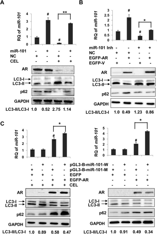 AR inhibition on celastrol-induced autophagy is related with miR-101 transactivation.To see whether miR-101 could affect AR suppression on celastrol-induced autophagy, AR positive LNCaP cells were transfected with miR-101 mimic or negative control (NC) for 24 h (A), followed by additional 24 h treatment with celastrol (2.0 μM, CEL). MiR-101 levels were determined by RT-PCR. #, P<0.05 versus NC transfection without celastrol treament. **, P<0.01 between miR-101 and NC transfections with celastrol treatment. The protein levels of LC3 and p62 as well as AR were determined by Western blotting using GAPDH as a loading control. B, AR negative DU145 cells were transfected with pEGFP-C1-AR (EGFP-AR) or empty vector (EGFP-V) in the presence of miR-101 inhibitor (miR-101 Inh) or negative control (NC). Cells were incubated in celastrol (2.0 μM, CEL) for an additional 24 h. MiR-101 levels were determined by RT-PCR. #, P<0.05 versus EGFP-V plus NC transfections. *, P<0.05 between EGFP-V and EGFP-AR in the presence of miR-101 inhibitor. The protein levels of AR, LC3and p62 were detected by Western blotting. C, DU145 cells were transfected with pGL3-B-miR-101-W (with wild type AR binding site) or pGL3-B-miR-101-M (with mutant AR binding site), along with AR expression vector (EGFP-AR) or empty vector (EGFP-V) for 24 h, then treated with DMSO or celastrol (CEL, 2.0 μM) for additional 24 h. MiR-101 levels were determined by RT-PCR. #, P<0.05 versus EGFP-V plus pGL3-B-miR-101-M transfections. *, P<0.05 between pGL3-B-miR-101-M and pGL3-B-miR-101-W transfections. The protein levels of AR, LC3 and p62 were detected by Western blotting using GAPDH as a loading control.