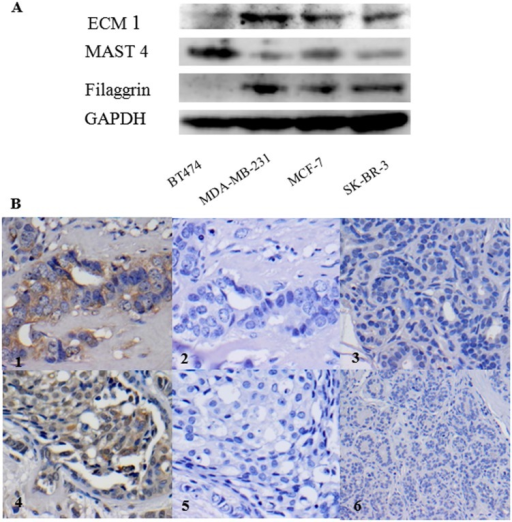 Validation of identified potential urine proteins ECM1, MAST4 and filaggrin from BC patients in human BC cell lines and protein MAST 4 in primary BC tissues.A. High level of MAST4 was found in the primary BC cell line (BT474) and medium levels of MAST4 were found in the metastatic BC cell lines (MDA-MB231, MCF-7 and SKBR-3). High levels of ECM1 and filaggrin were found in the metastatic BC cell lines (MDA-MB231, MCF-7 and SKBR-3) while low level of ECM1was seen in the primary BC cell line (BT474) and no filaggrin expression was detected in the primary BC cell line (BT474). GAPDH was used as a loading control. B. Illustration of the positive expression of MAST4 in BC using immunohistochemistry. Moderate cytoplasmic expression of MAST4 (++) were seen in the primary IBC (B1) and DCIS (B4) tumours (n = 5 for each stage of BC); there was no expression of MAST4 in the negative controls for either IBC (B2) or DCIS (B5). No staining was seen for MAST4 in normal breast tissues (B3 and B6), (n = 5). Magnifications x 400 in B1, B2, B4 and B5; magnifications x 200 in B3; magnifications x 100 in B6. Brown indicates positive staining and blue indicates nuclei. All results were from 3 independent experiments (n = 3).