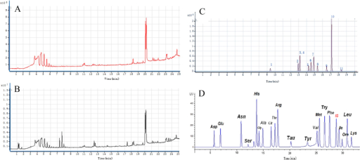 (A) Total ion current chromatography (TIC) of plasma samples derived from the sham group; (B) Total ion current chromatography (TIC) of plasma samples derived from the ischemia group; (C) Profile of HPLC chromatogram of serum fatty acids in ischemic rats; (D) Profile of HPLC chromatogram of serum amino acids in ischemic rats.
