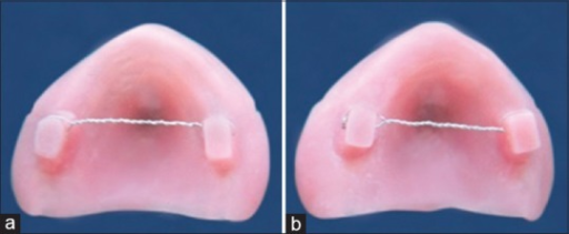 (a) Heat cure denture base made with border molding. A wire has been passed through the raised platforms for attachment to the retention testing device. (b) Heat cure denture base made without border molding. A wire has been passed through the raised platforms for attachment to the retention testing device