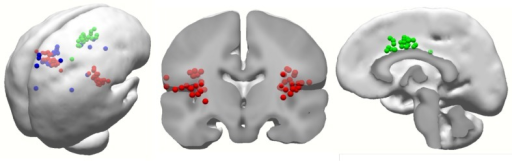 Distribution of all equivalent current dipoles of 4-W LEPs. S2/insula or neighborhood areas are characterized by red dots. Midline cortical dipoles, including anterior and middle cingulate gyri, are characterized by green dots. Contralateral dipoles within dorsal sensorimotor cortex, including primary somatosensory cortex and primary motor cortex, are characterized by blue dots