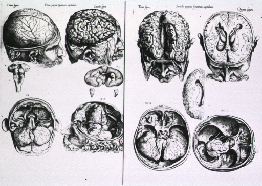<p>A series of vignettes of a head with skull cap removed depicting the anatomy and subdivisions of the brain as seen from above.</p>