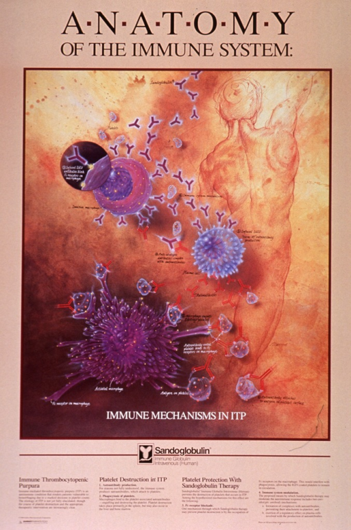 <p>Peach poster with black and white lettering.  Initial title words at top of poster.  Visual image is an illustration.  Right side of illustration shows the back of the human body, as if drawn in an anatomical drawing class, with highly defined musculature.  Left side of illustration depicts the interaction of macrophages and platelets in immune thrombocytopenic purpura and the way in which Sandoglobulin inhibits this interaction.  Lengthy caption below illustration numbered to correspond with illustration.  Publisher information in lower left corner.</p>