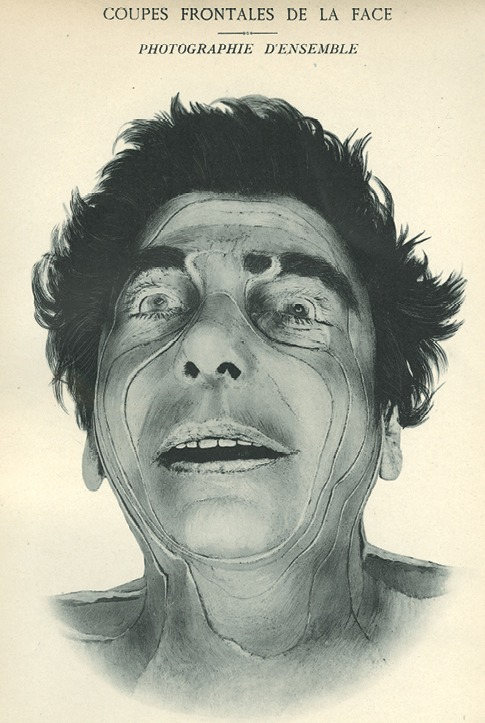 <p>Image of frontal view of man's face showing lines of incision. Issued in seven installments by the flamboyant Parisian surgeon Eugene-Louis Doyen (1859-1916), this atlas of 279 &quot;heliotyped&quot; photographic plates of cross-sectioned bodies was a radical departure from past practice. Atlas d'anatomie topographique.</p>