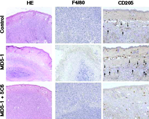 MD5-1 induces infiltration of macrophages and DCs in tumor site. Tumor was removed 8 d after tumor inoculation from control Ig-, MD5-1–, or MD5-1– and anti-CD11b mAb (5C6)–treated mice, and then stained with H/E (×5), anti-F4/80 mAb (×10), or anti-CD205 mAb (×10). The marginal region of s.c. tumor is shown. A massive infiltration of F4/80+ macrophages (stained brown) was observed in the marginal region of tumor from MD5-1–treated mice. The arrows are indicated to distinguish CD205+ DCs from nonspecific staining of mast cells. Representative of five tumors in each group.