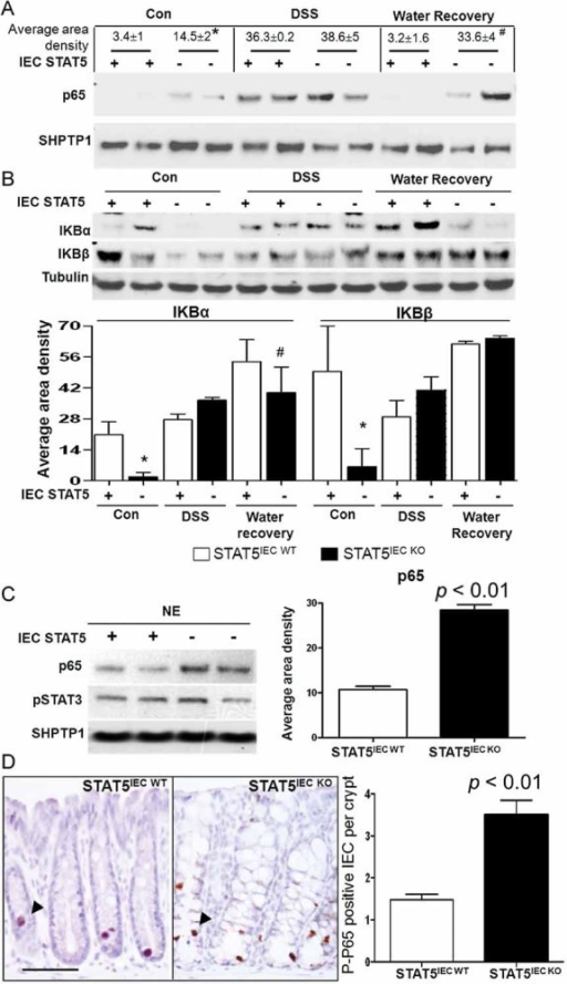 STAT5 in IECs regulates NF-κB activation in response to gut injuryMice were treated with 3% DSS for 5 days followed by 5 days of water. Colonic mucosa was extracted, and NE and CE recovered.A,B. p65 nuclear abundance was determined in NE (A), and IκBα and Iκβ were detected in CE (B). Signal intensity was determined by densitometry, results were expressed as the mean ± SEM (n = 5). *p < 0.05 versus STAT5IEC WT mice, #p < 0.05 versus STAT5IEC WT mice in the water recovery group.C. IECs were isolated from STAT5IEC WT and STAT5IEC KO mice, p65 nuclear abundances were determined by WB.D. Colon sections were immunostained with phosphoserine p65 (P-p65) as indicated by arrows. Results were expressed as average positive cells per crypt, n = 5, bar = 100 µm.