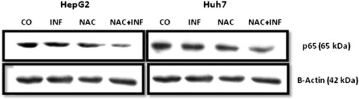 NAC and IFN synergistically inhibit p65 expression in HepG2 and Huh7 cells. Immunoblotting analysis of p65 subunit and β-actin of cells treated for 72 h with IFN 2.5x104 U/mL and/or NAC 10 mM.