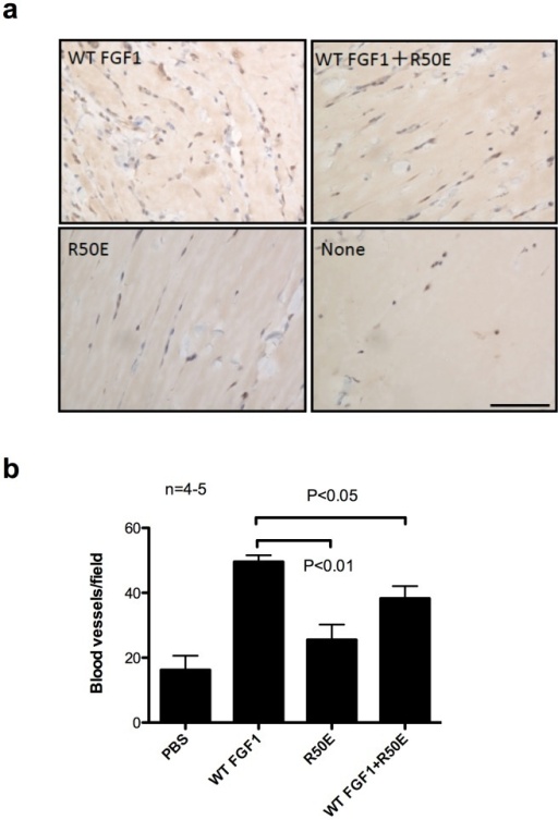 R50E suppresses angiogenesis in Matrigel plug assays in rat.Matrigel plug containing WT FGF1 (1 µg/ml), R50E (1 µg/ml) or the mixture of WT FGF1 (1 µg/ml) and excess R50E (50 µg/ml) were injected subcutaneously into the back of rat, respectively. The plugs (n = 4−5) were removed 10 days after injection and tissue sections were stained for von Willebrand factor, a blood vessel marker. a. Representative images are shown. Scale bar = 50 µm. b. The number of extended blood vessels were counted under a light microscope. Data is shown as means +/− SE. Statistical analysis was done by one-way ANOVA plus Tukey analysis.