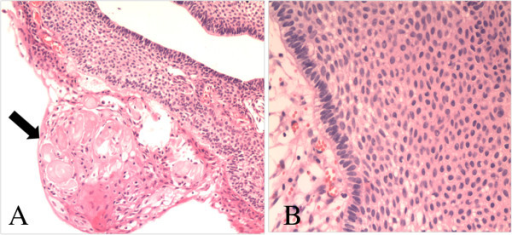 Photomicrographs of the pathological specimen showing the features of craniopharyngioma: (A) wet keratin (arrow, H & E, ×100), (B) multiple layers of squamous epithelium (H & E, ×200).