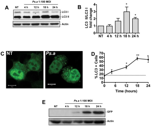 P. aeruginosa induces autophagy in mast cells.Primary mouse BMMCs were left untreated (NT) or infected with P. aeruginosa strain 8821 at an MOI of 1∶100. Lysates were collected at the time points indicated and subjected to Western blot analysis for LC3 and actin loading control (A). The fold change in the ratio of LC3-I to LC3-II normalized to actin was determined by scanning densitometry (B) (n = 3 ± SEM, *p<0.05). HMC-1 5C6 human mast cell line stably expressing LC3-GFP reporter were left untreated (NT) or infected with P. aeruginosa at an MOI of 1∶100 for 18 hours (Ps.a) before being fixed and examined by laser scanning confocal microscopy (C). HMC-1 5C6 cells stably expressing LC3-GFP were left untreated (NT) or infected with P. aeruginosa strain 8821 at an MOI of 1∶100. At the indicated time points cells were fixed for the study by confocal microscopy, and the percentage of cells displaying 5 or more GFP puncta was assessed (D). (n = 3± SEM, *p<0.05, **p<0.01). Lysates were also prepared from HMC-1 5C6 cells stably expressing LC3-GFP and Western blot analysis for free GFP and actin loading control was performed (E).