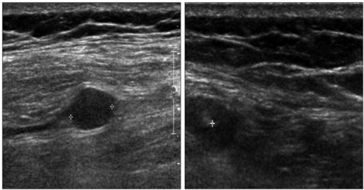Intraoperative ultrasonography (USG) showing an oval hypoechoic mass. With the aid of intraoperative USG, the deep seated tumor could be located exactly.