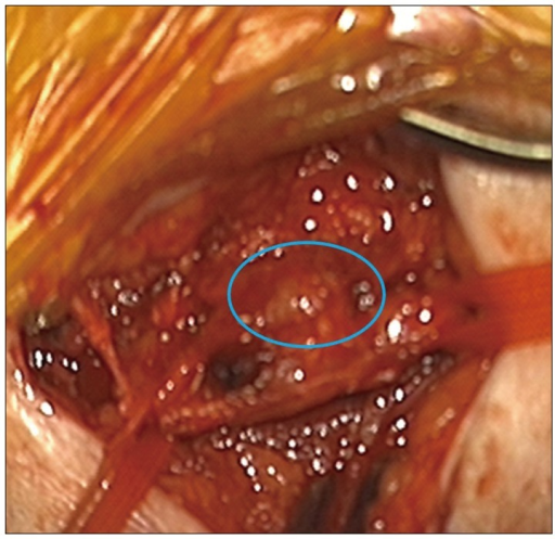 Operative view of the glomus tumor (inside the circle) : oval in shape with moderate vascularity, and well demarcated with the nerve. The tumor was removed without difficulty using microscopic technique. The tumor was connected to a vessel.