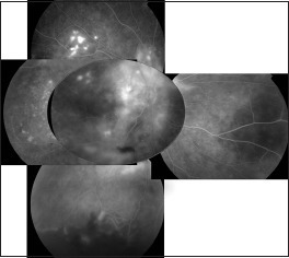Late-phase fluorescein angiogram of the RE shows juxtapapillary retinal neovascularization, extensive RPE changes and multifocal pinpoints.