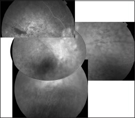 Late-phase fluorescein angiogram 3 months later shows resolution of pinpoints in the RE