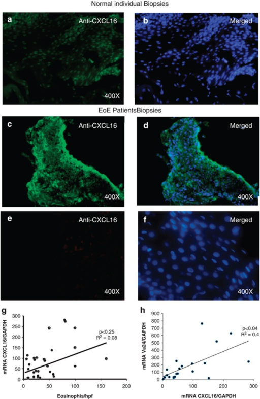 Analysis of CXCL16 expression in human esophageal biopsies. A representative photomicrograph of baseline esophageal CXCL16 expression in normal (comparison control) subjects (a, b) and EoE patients (c, d) stained with anti-CXCL16 antibody (a–d) or isotype-matched IgG (e, f) and overlapped with a DAPI-stained mounted reagent. Correlations between the peak eosinophil number/hpf vs CXCL16 mRNA expression and Vα24 vs CXCL16 mRNA expression normalized with GADPH in human EoE (g, h). The r-value was calculated using the Spearman correlation test (n=24–28). Statistical significance was calculated using both the Mann–Whitney and Kruskal–Wallis test.