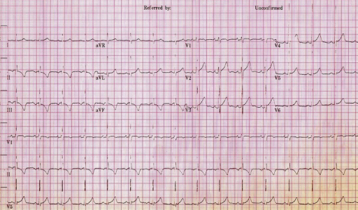 Twelve lead electrocardiogram taken a day after admission showing small U waves particularly in the precordial leads.