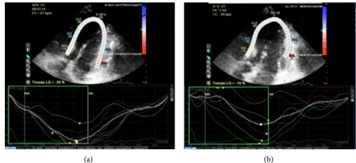 Speckle tracking echocardiogram with Doppler. Comparison between images during and after dobutamine infusion ((a) and (b)), showing differences in systolic global strain (29% and 18%, resp.).