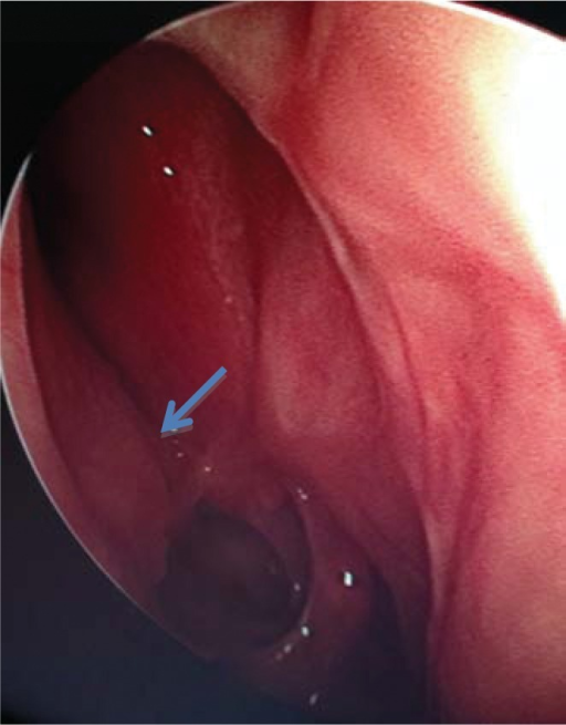 One month postoperative endoscopic exam shows a more normal, medialized, position of the right orbital contents (arrow) and a patent ethmoid cavity.