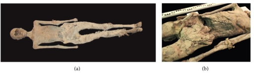 (a), (b): overview of mummy C1 (a) and close-up view of postmortem exposed abdominal cavity showing packages of bandages (b).