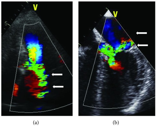 Typical mitral regurgitation associated with SAM and subaortic LVOT obstruction with a posterolateral jet orientation (arrows) in a transthoracic (a) and transesophageal view (b). LA: left atrium; RA: right atrium; LV: left ventricle; Ao: aorta; and IVS: interventricular septum.