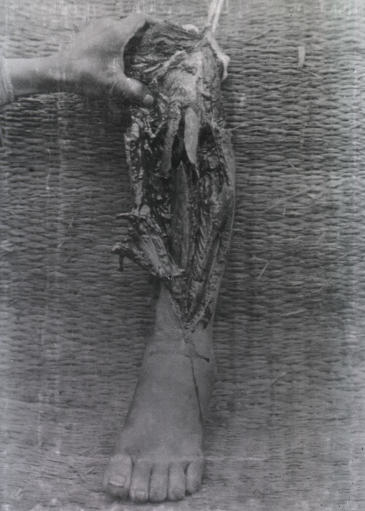 <p>An amputated lower left leg of soldier showing flayed layers of skin and bone.</p>