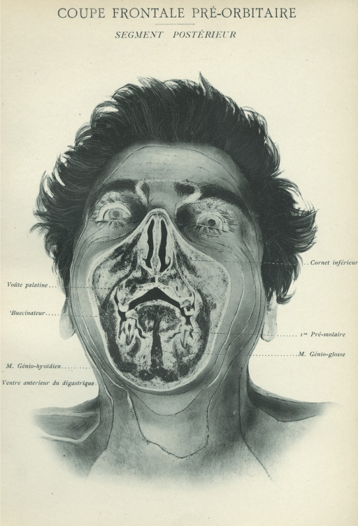 <p>Image of frontal view of man's face showing the specific parts: voute palatine, buccinateur, m. genio-hyoiden, ventre anterieur de diagastrique, cornet inferieur, 1re pre-molaire, m. genio-glosse. Issued in seven installments by the flamboyant Parisian surgeon Eugene-Louis Doyen (1859-1916), this atlas of 279 &quot;heliotyped&quot; photographic plates of cross-sectioned bodies was a radical departure from past practice. Atlas d'anatomie topographique.</p>